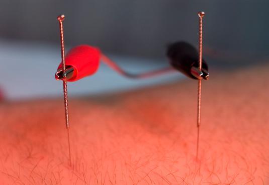 L'électroacupuncture, solution au stress ?